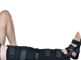 Nẹp chân Orbe H1